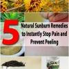 5 remedios naturales Sunburn para Detener inmediatamente el dolor y prevenir Peeling