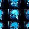 ¿Podría un escáner cerebral saber si usted va a convertirse en un criminal?