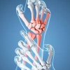 Cómo funciona la artritis