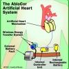 Cómo artificial corazones trabajan