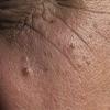 ¿Con qué frecuencia debe usted ver a su dermatólogo?