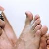 Consejos rápidos: 5 remedios caseros para el pie de atleta