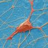 Nunca vamos a ser capaces de trasplantar neuronas?